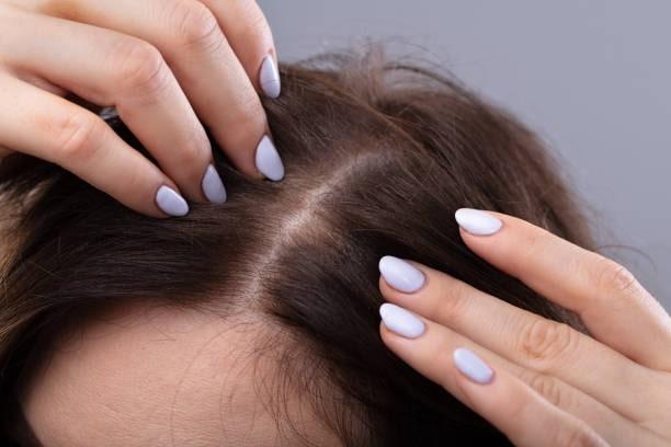 How Can I Stimulate my Hair Follicles for Hair Growth?
