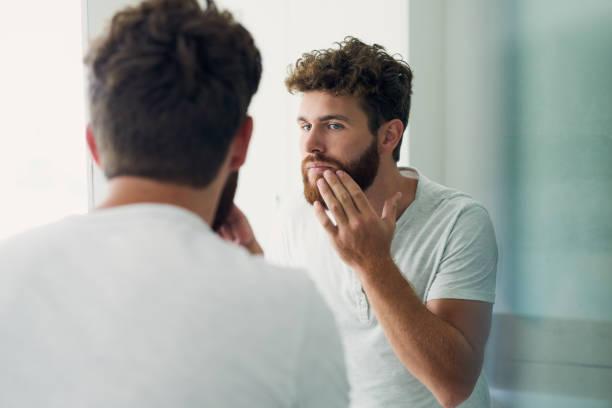 dandruff in beard