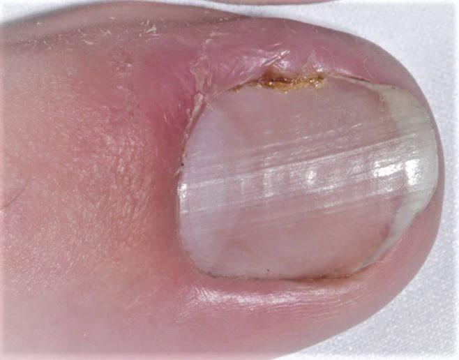 Treatment for Ingrown Toenail
